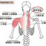 肩甲挙筋のシール鍼で肩こりが激減の詳細へ